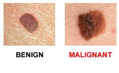 differences between malignant melanoma and a normal mole do you know your abcdes skincancer org