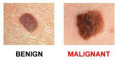 what color is melanoma always remembered darren farwell live in our skinz