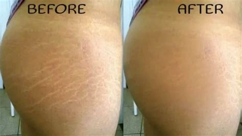 red light therapy lotion for stretch marks how to get rid of stretch marks 5 effective home remedies
