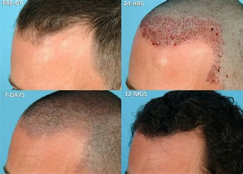 Change Hair Type With Surgery by Hair Transplant Cost In The Uk Novacorpus