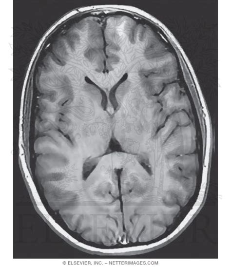 axial section of brain cerebral cortex and basal ganglia axial section
