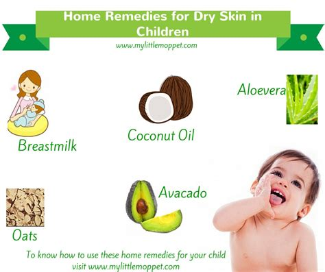 skin remedy 5 amazing home remedies for skin in children my moppet