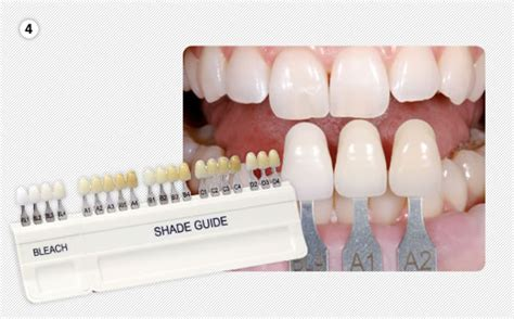 teeth color chart tooth color chart car interior design