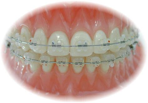 clear braces with color clear tooth colored braces