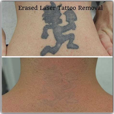 erased tattoo removal before after erased laser removal