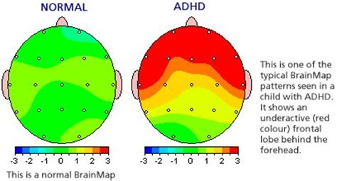 Add Adhd Or Just Plain Normal Boy by Adhd It S A Real Problem Brainadvantage