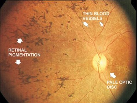retinitis pigmentosa | eyes and vision specialist