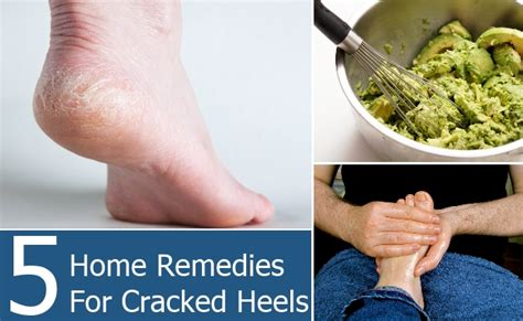 5 home remedies for cracked heels find home remedy