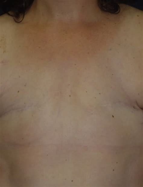 nipple tattoo breast surgery breast reconstruction 14 dr tim love