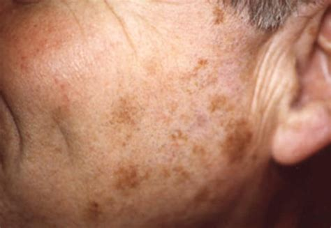 light colored spots on skin liver spots pictures skin causes treatment