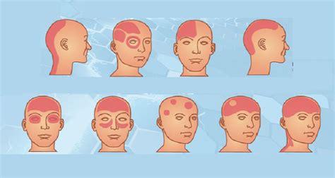dolore lato destro testa ecco quali sono i pi 249 pericolosi mal di testa e cosa fare