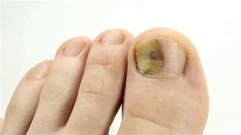 toenail separated from nail bed toe nail bed infection 28 images management of