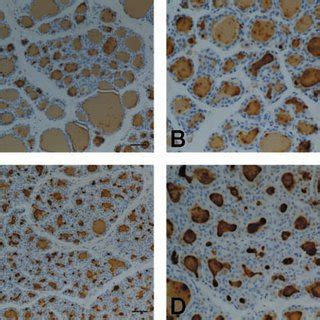 (pdf) rat thyroid hyperplasia induced by gestational and