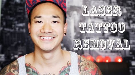 my tattoo removal experience laser removal my experience doovi