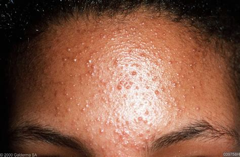 large bump on hairline near right temple general health causes of itchiness 171 safelifetips