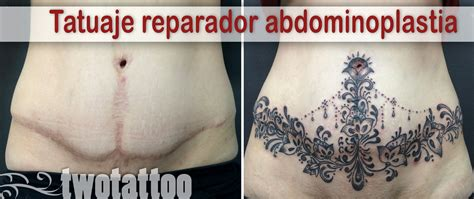 imagenes tatuajes abdominoplastia tatuaje reparador sobre ces 225 rea y abdominoplastia twotattoo