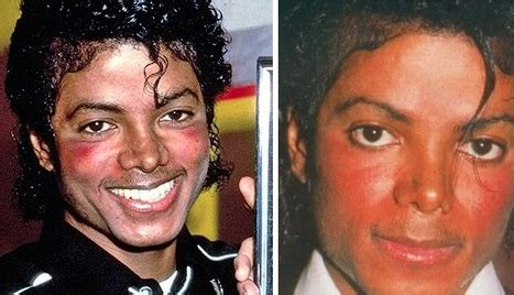 why did michael jackson change his skin color why did michael jackson s skin turn white quora