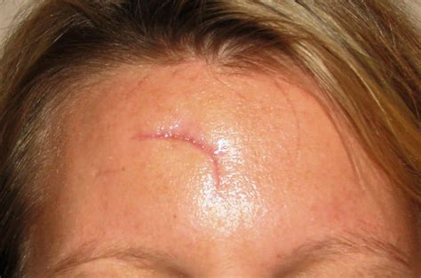 covering a large scar on forehead home remedies for scar removal how to remove scars youtube