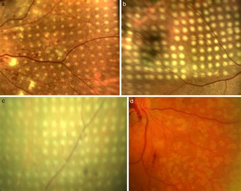 grid pattern laser photocoagulation comparison of conventional pattern and novel navigated