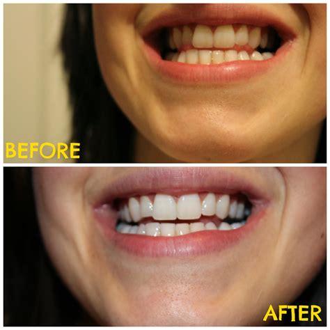 Tanden Polijsten Voor Bleken by Tanden Bleken Met Kurkuma