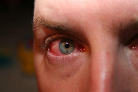 pink eye pink eye dr leslie greenberg s