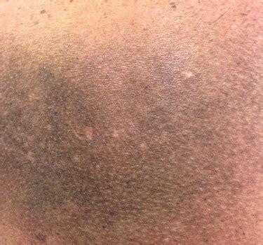 imagenes manchas oscuras en la espalda como deshacerse de las manchas solares marrones por la