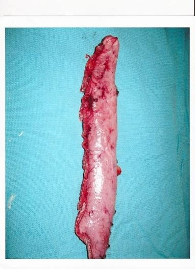 staph infection c section incision what do surgical staples look like pictures to pin on