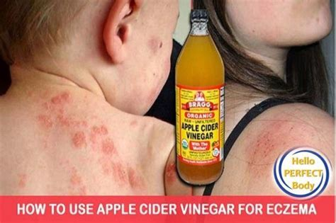Detox Armpits With Apple Cider Vinegar by 17 Best Ideas About How To Treat Eczema On