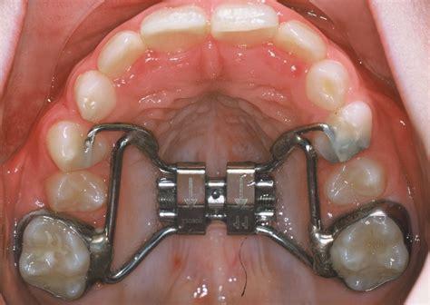 qu est ce qu un traitement d orthodontie al dente