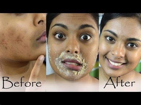 how to fade acne scars dark brown hairs best 20 brown patches on skin ideas on pinterest brown