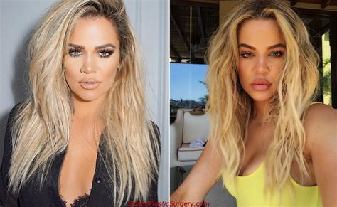khloe kardashian plastic surgery 2015 khloe kardashian before plastic surgery sellers plastic