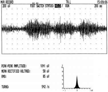 speech pattern exles info vocal fold kelmac medical