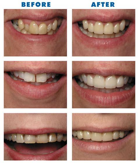 explaining fast methods of veneers for crooked teeth our