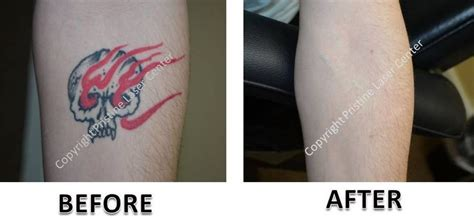 orlando tattoo removal laser removal before and after photos orlando