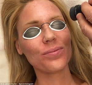 celebrity orange skin real housewives star gretchen rossi receives laser skin