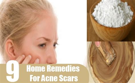 skin discoloration home remedies treatments and