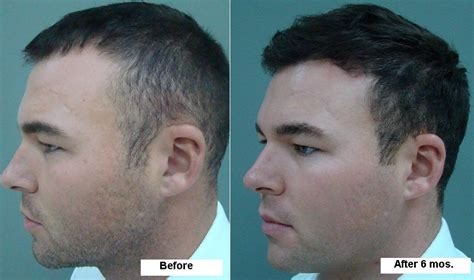 6 month hair growth men hair transplant for men hair loss