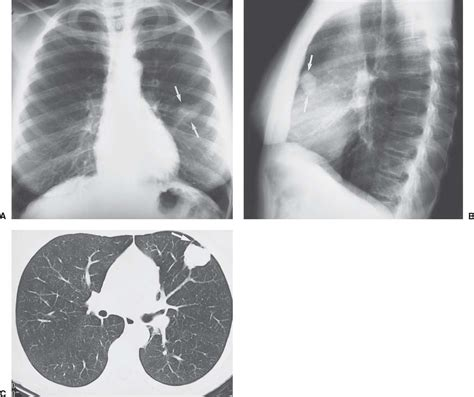 Multiplek Lung solitary and pulmonary nodules radiology key