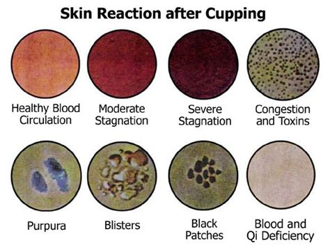 Detox Reaction After best 20 cupping therapy ideas on cupping
