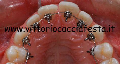 apparecchi dentali interni spazio tra i denti come risolvere