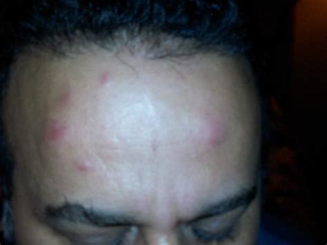 do bed bugs bite your scalp bed bug bites on face pictures photos