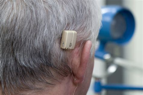 getting a perm with a baba hearing implant can i hearing loss treatment nhs uk