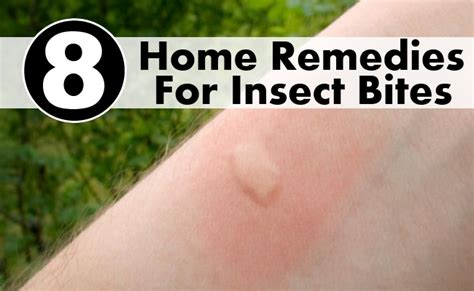 8 home remedies for insect bites diy health remedy