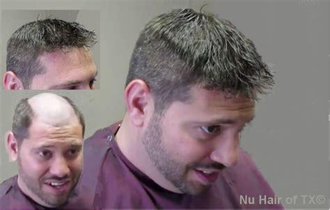 Hairline Restoration For Men | best hair replacement for men photos 2017 blue maize