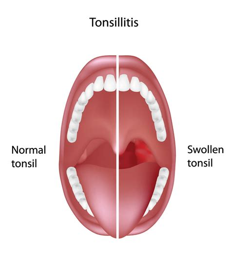 Tongsis Tongsis tonsillectomy and adenoidectomy t a fort worth ent sinus
