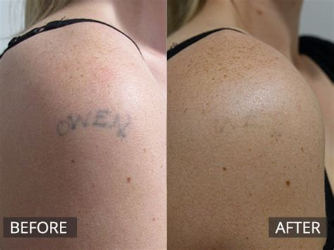 laser tattoo removal melbourne laser removal melbourne the doc clinic hoppers