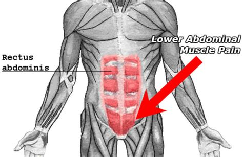 what does a pulled lower abdominal feel like symptoms list