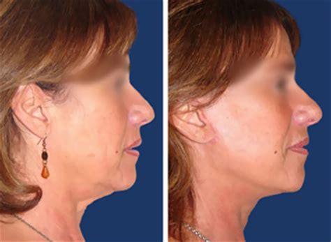 Chirurgie Oreille Dã Collã E Feminiza 231 227 O Fotos De Antes E Depois Resultados