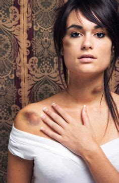 tattoo on chest bruise 1000 images about bruises wounds fx make up on pinterest