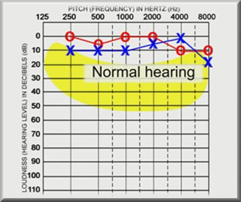 what is capd? | ear central, pllc
